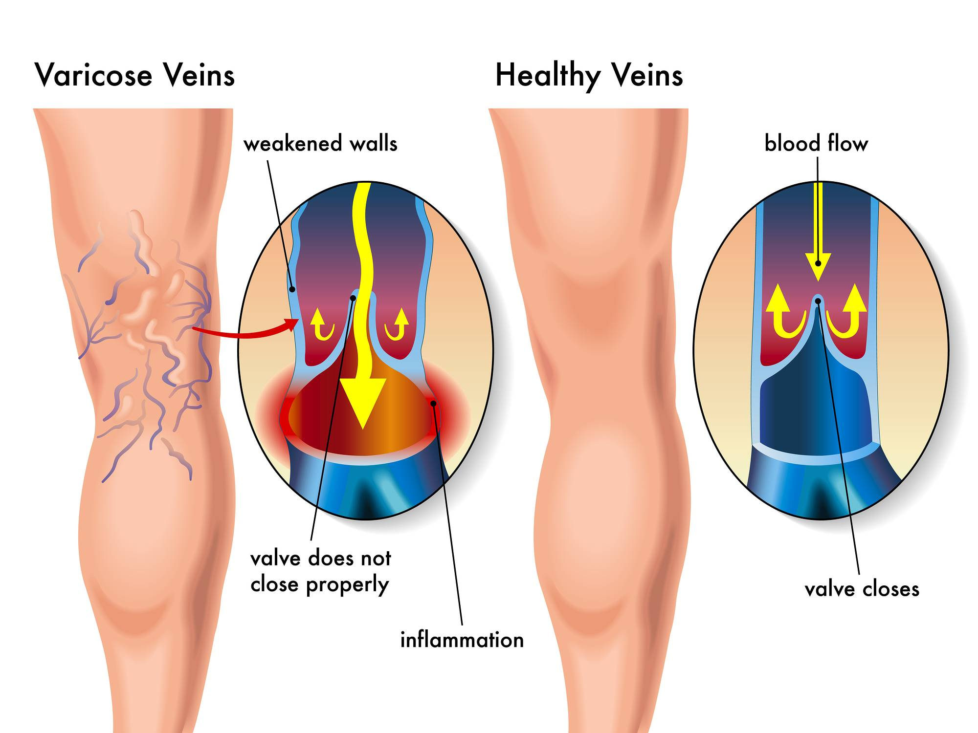 medical illustration of the effects of the varicose veins